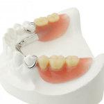 Partial Dentures Thumb
